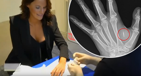 Švédsko zahajuje implantaci mikročipů pod kůži zaměstnanců