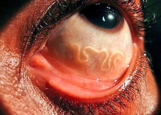 Paraziti pro lékaře většinou neexistují. Zde máte 10 nejstrašnějších parazitů a nejen u lidí