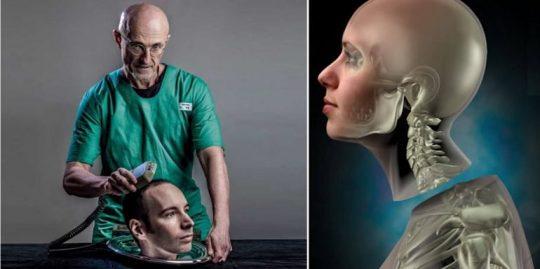 Prvá transplantácia hlavy sa blíži