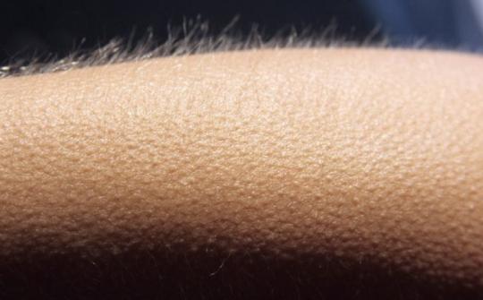 Pokud vám muzika nahání husí kůži, máte zřejmě speciální mozek, zjistil výzkum