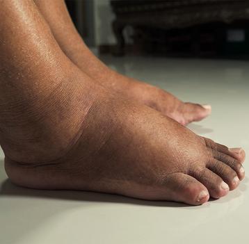 7 věcí, které se vám snaží říct oteklé nohy a kotníky