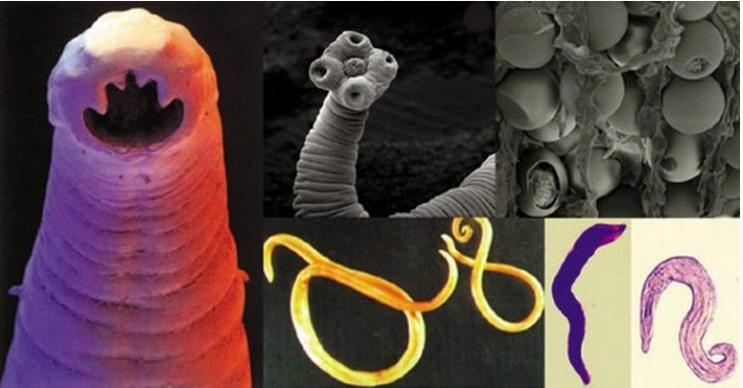 Takto zjistíte, že máte v těle parazity. Příznaky, o kterých ani netušíte